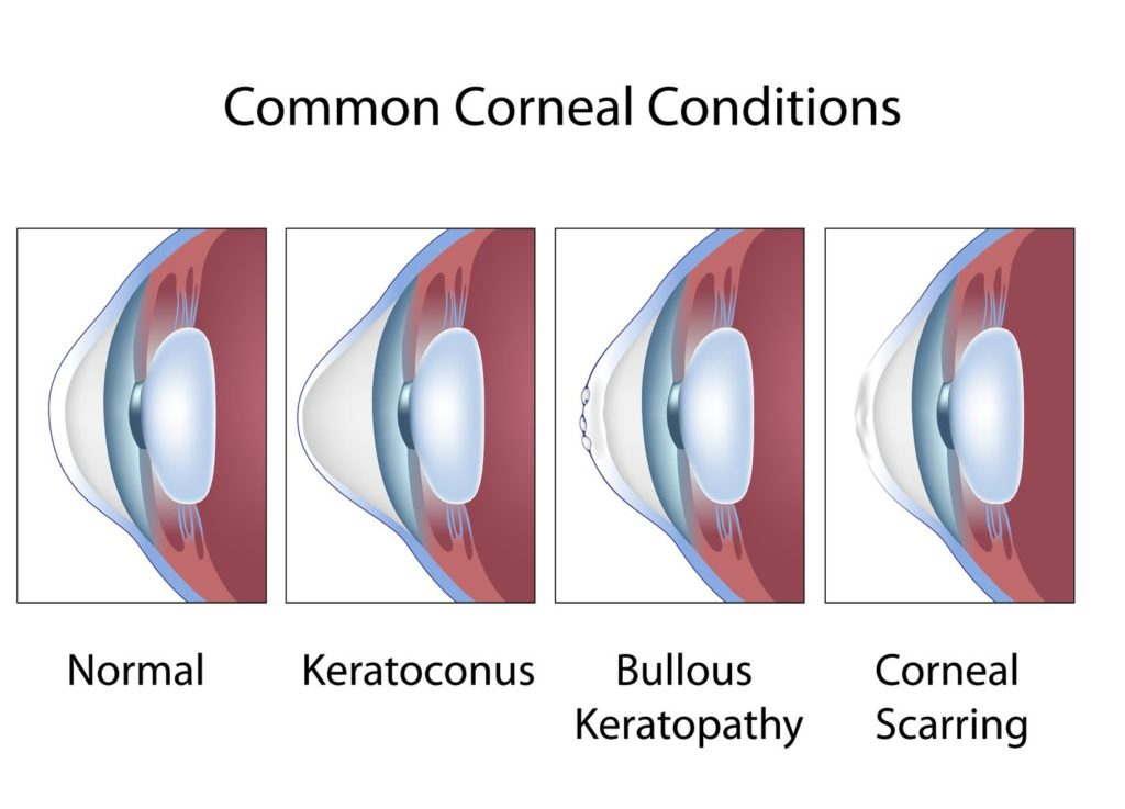 Keratoconus Lifetime Eye Care Lewiston