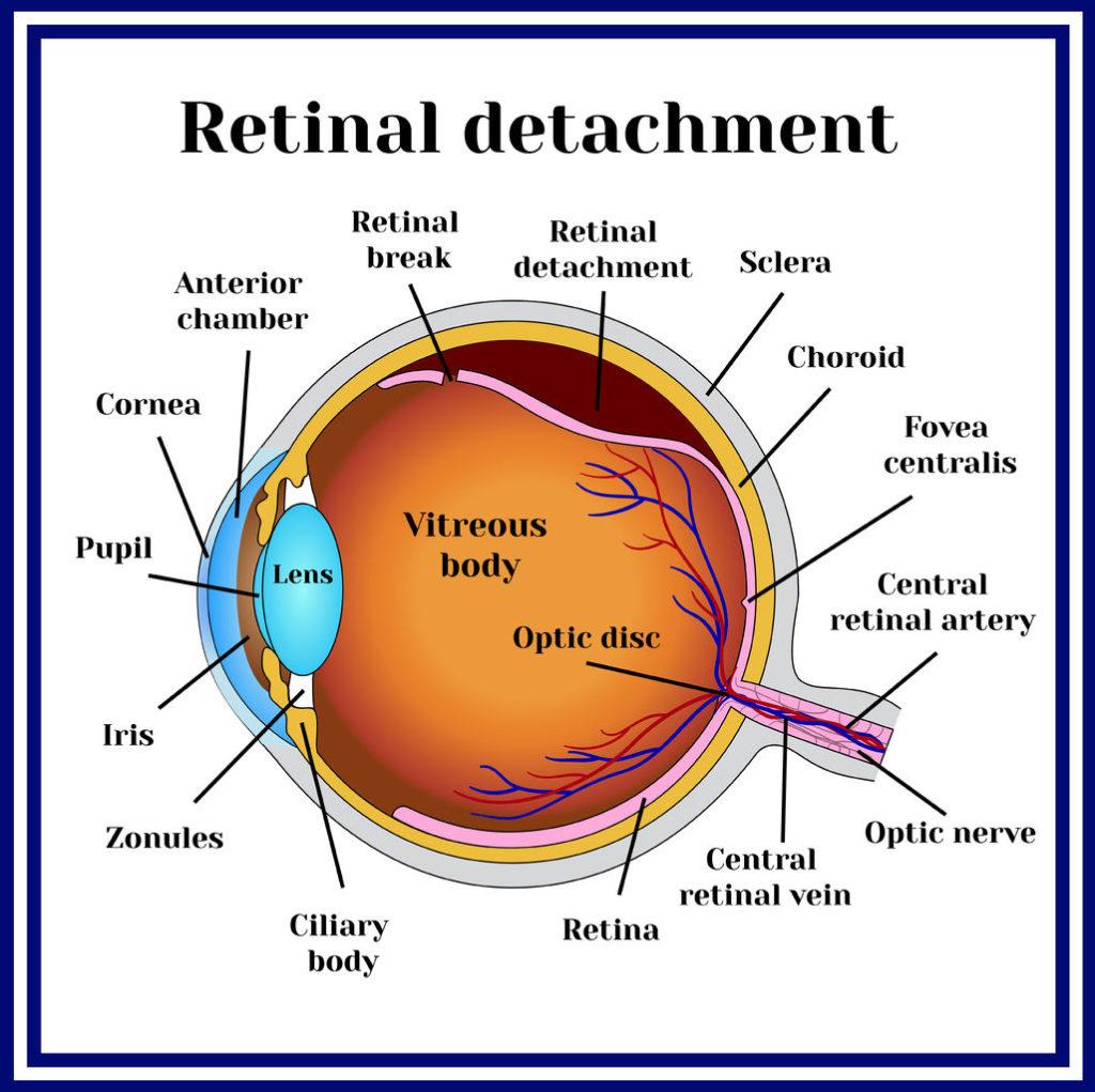 Retinal Trauma