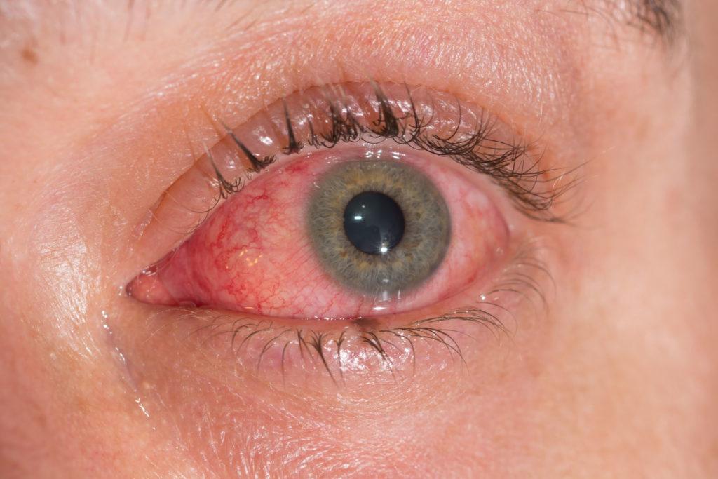 eye disease doctor clarkston wa lewiston idaho